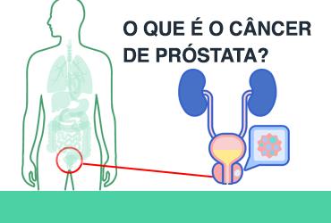 cancer de prostata o que é Milyen fertőzésre kerülnek prosztatitisnek